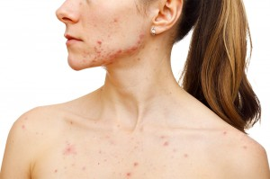 acne is a common condition
